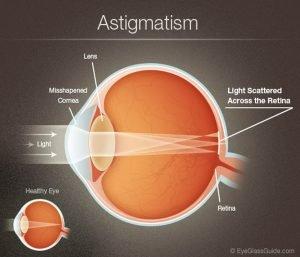 astigmaaa