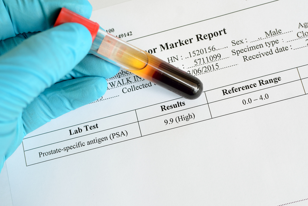 Penanda Tumor(Tumor Marker), Boleh guna untuk saring kanser ataupun tidak?