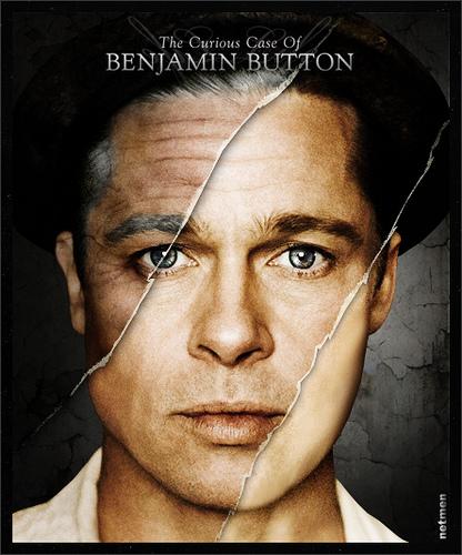 Sindrom Benjamin Button