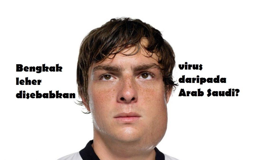 Bengkak di leher: Disebabkan virus beguk(mumps) daripada Arab Saudi?