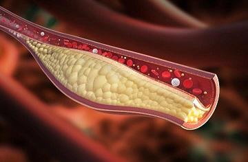 Kolesterol baik dan Kolesterol Jahat ; Fakta atau Auta