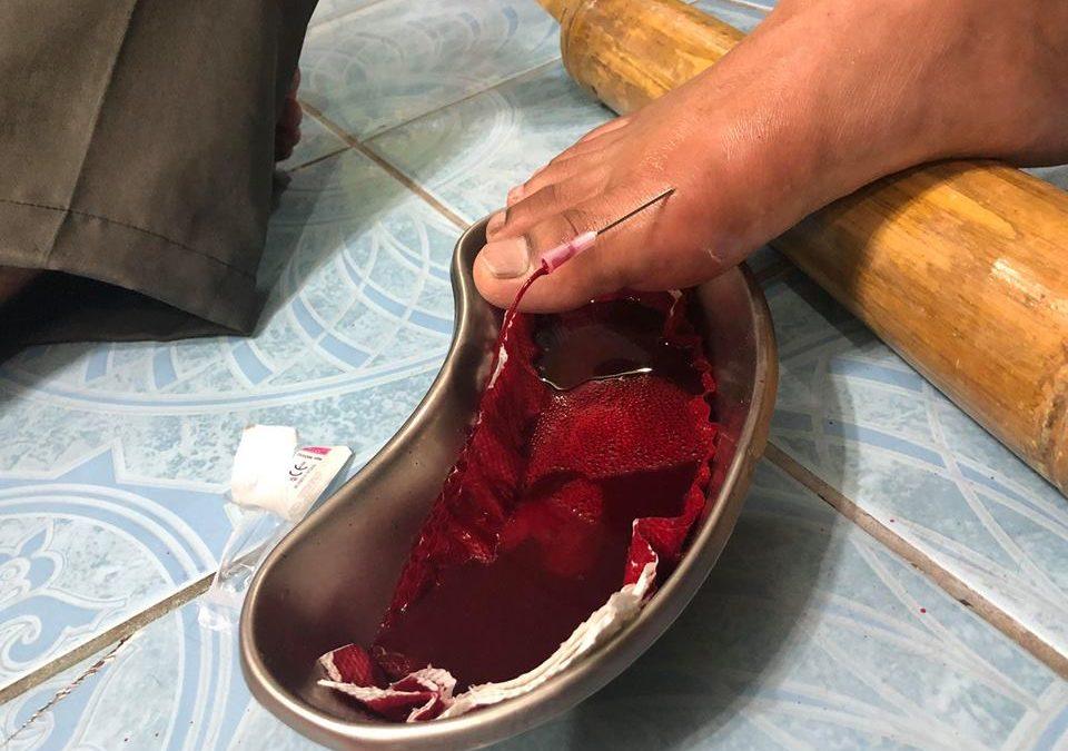 Kaedah keluarkan darah ini, Boleh rawat gout ke?