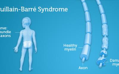 Guillain-Barré Syndrome : Satu Pengenalan
