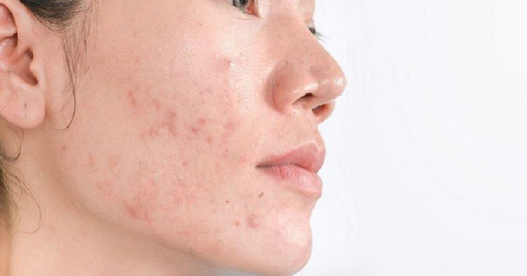 adakah hydroquinone untuk kulit