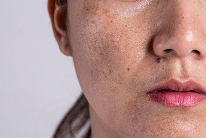 Description: Tips for Managing Your Melasma This Summer - Windsor Dermatology