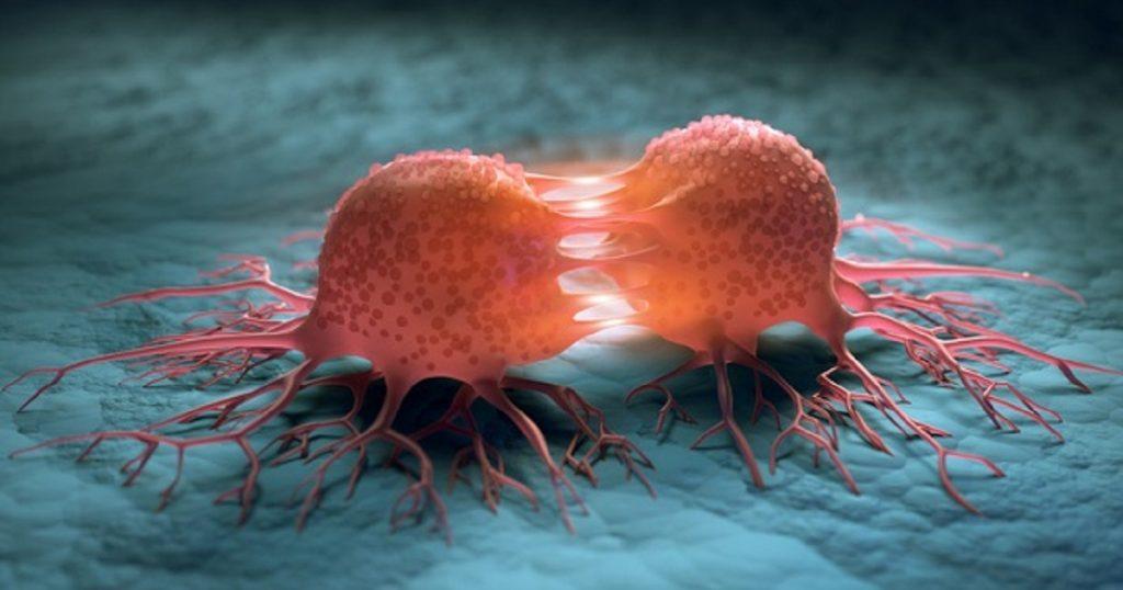 cara mencegah kanser